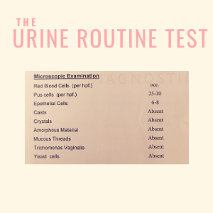 Urine routine test for Prostate disease