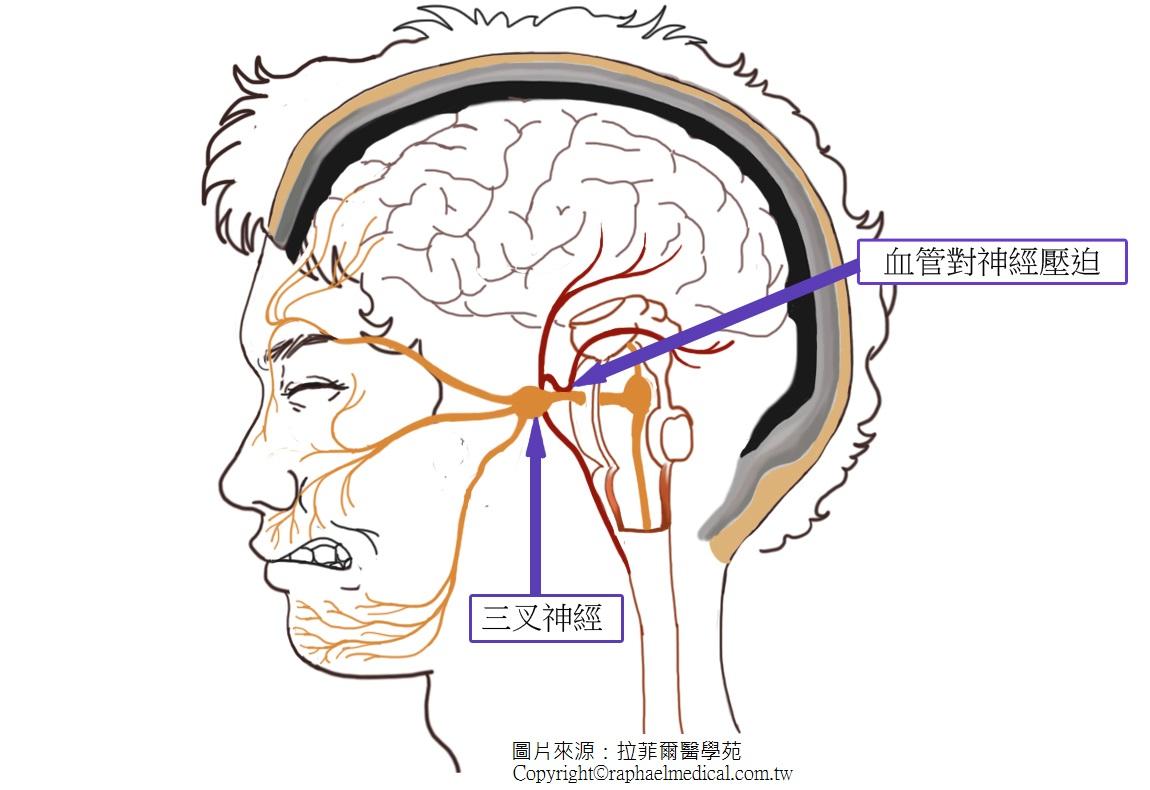 三叉神經痛的無侵入性新療法 - 拉菲爾醫學苑-自律神經失調,神經痛,弱視,耳鳴眩暈,失眠,過敏