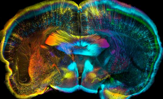 This confocal micrograph shows the nerves in a cross-section of an adult mouse's brain
