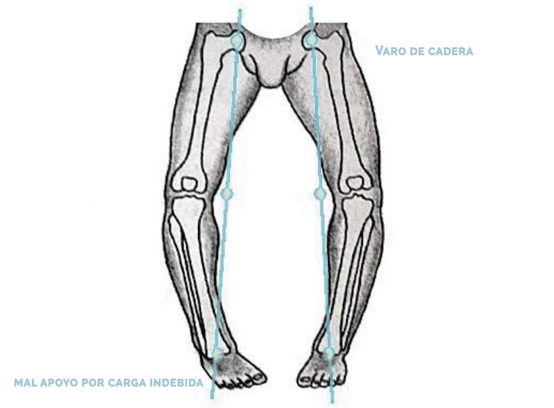 poner al bebé de pie - osteopatía niños Mallorca