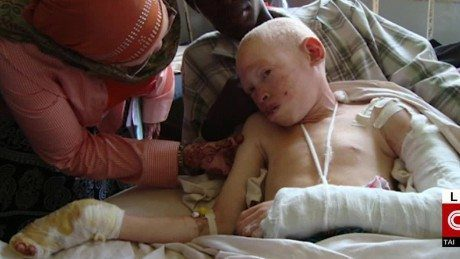 151009005714-tanzania-albino-teen-los-angeles-bones-sidner-dnt-nr-00004106-large-169