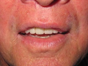 image of denture patient after new denture was made