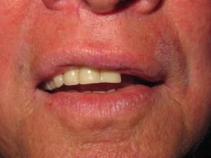 image of pt w/ broken front teeth on denture