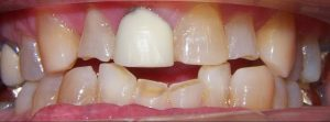 image of patient before treatment with ceramic crowns