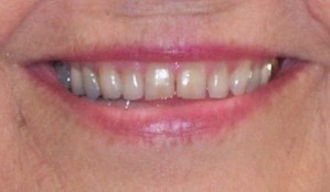 image taken before porcelain veneers