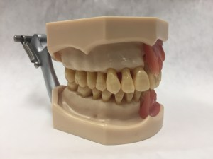 image of dental model, gums removed, healthy bone