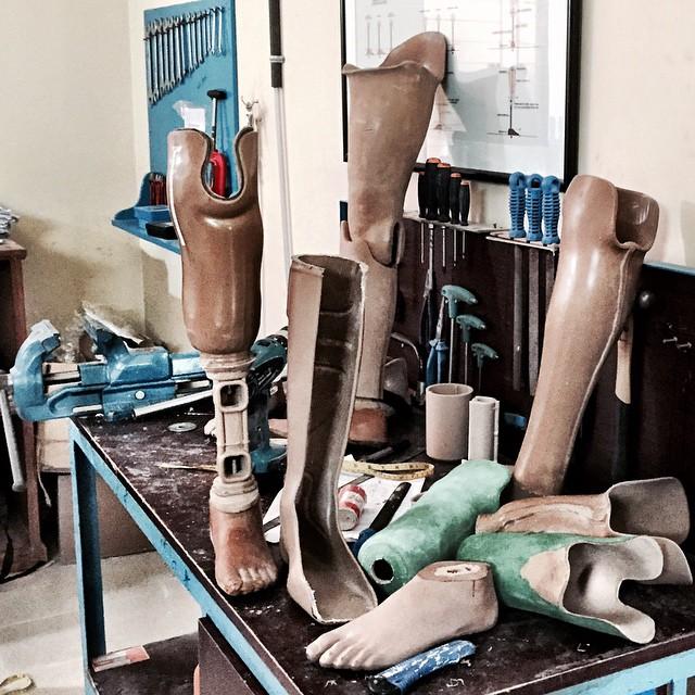 Außer Prothesen, nichts gewesen? Wie kann außer mit Geld noch nachhaltig geholfen werden? #cbmbd14