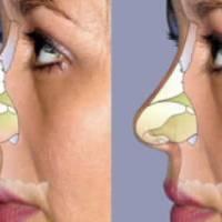 Cirugía de Nariz o Rinoplastía