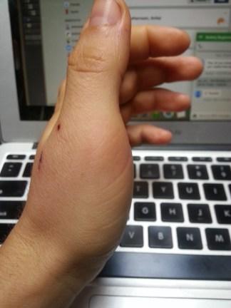 Bike accident swollen thumb