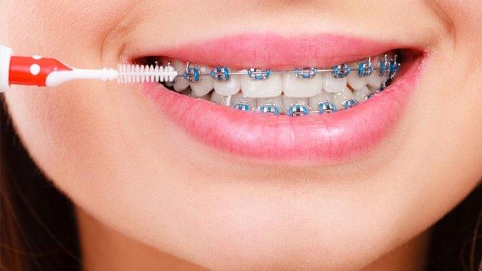 braces cijene