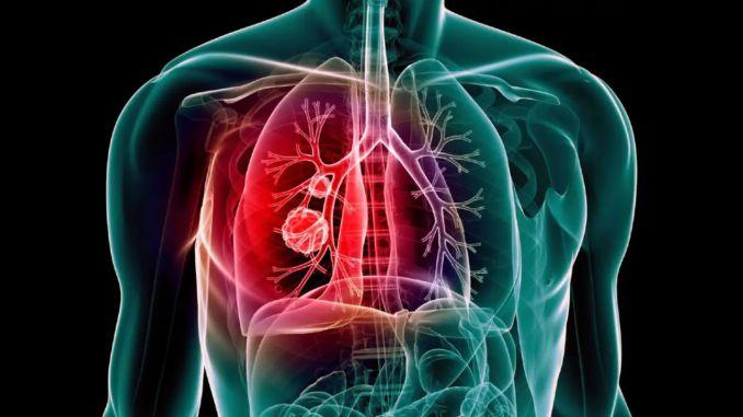 gubici od upale pluća uslijed pandemije mogu se povećati u procentima