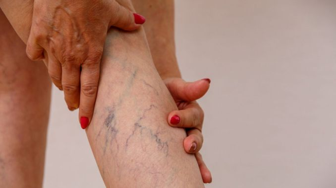 What are the symptoms and treatment methods of varicose veins?
