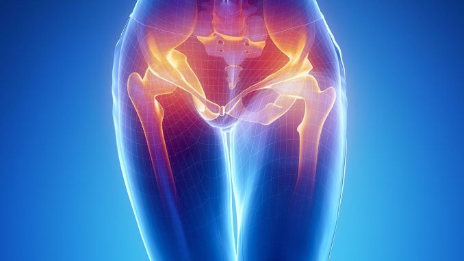 What causes hip calcification? Symptoms and treatment of hip calcification