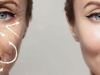 Bodite pozorni na obrazne gubice in povešanje