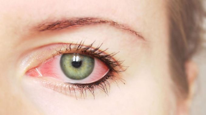 glaucoma is an insidious and irreversible disorder
