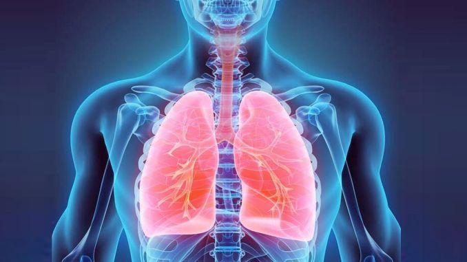 lung high blood pressure is a life-threatening disease
