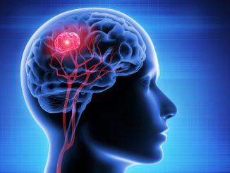 什麼是腦腫瘤什麼是腦腫瘤的症狀有哪些治療方法