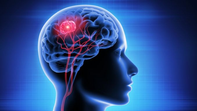 What is brain tumor what is the symptoms of brain tumor what are the treatment methods