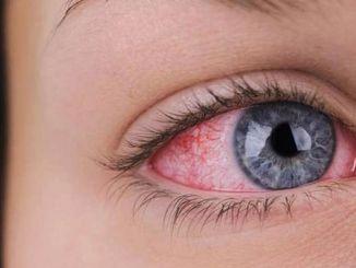 ما هو ضغط العين؟ من يمكنه رؤية ضغط العين؟ كيف يتم اكتشافه؟ كيف يتم علاج ضغط العين؟
