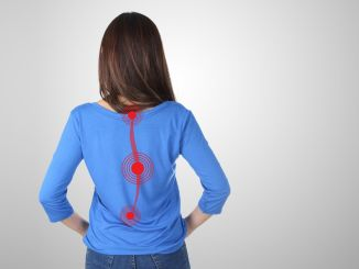 Known misconceptions about scoliosis