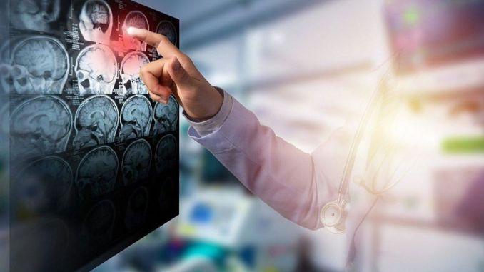 Rizik od moždanog udara smanjuje se promjenom načina života