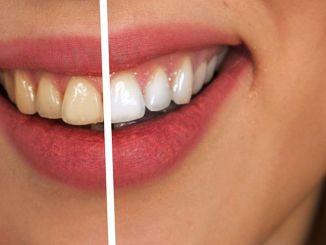 các phương pháp làm trắng răng thiếu ý thức có thể gây hại
