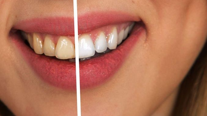 يمكن أن تسبب طرق تبييض الأسنان غير الواعية ضررًا