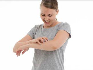 皮膚のかぶれや赤みの原因は、脂漏性皮膚炎である可能性があります。