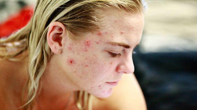 environmental factors in percent of skin problems