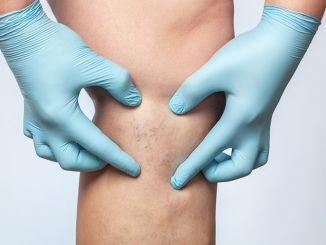 Uppmärksamhet patienter med åderbråck