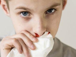 Aké sú príčiny krvácania z nosa u detí, čo mám robiť?
