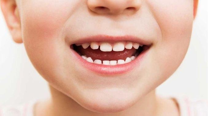 Teeth should be taken care of in children