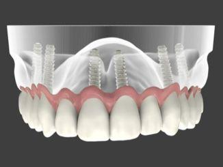 Колико траје животни век зубних имплантата?