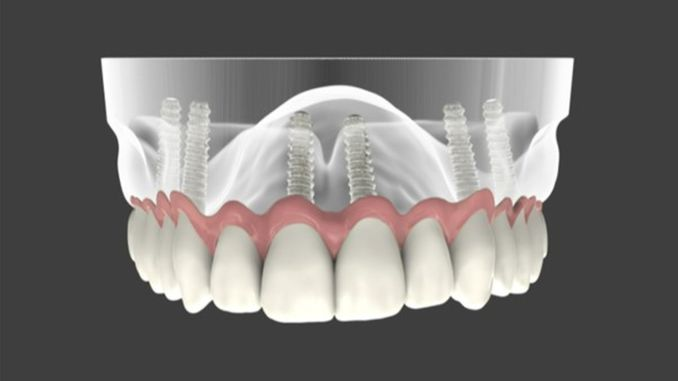 How long is the lifespan of dental implants?