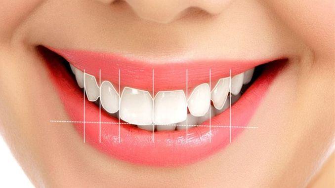 dental problem prevents smile