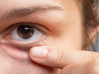A sty that doesn't go away can be a sign of an eye disorder