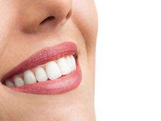 lijep osmijeh povećava samopouzdanje