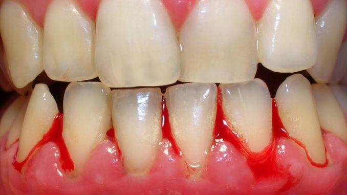 Was ist Zahnfleischbluten und gibt es eine Behandlung gegen Zahnfleischbluten?