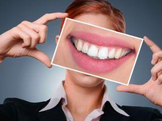 Treba obratiti pažnju na uzroke žućenja zuba.