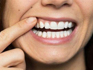 Druga škoda nizkega imunskega sistema je za zobe.