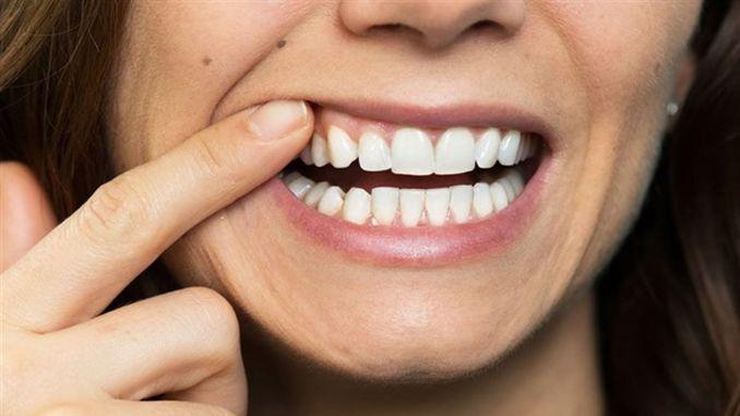 ضرر آخر للجهاز المناعي المنخفض هو الأسنان.