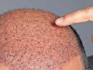 不要有頭髮移植的噩夢