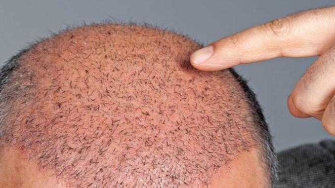 don't have a hair transplant nightmare