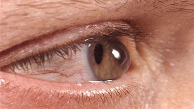 احذر من أمراض العيون في الخريف