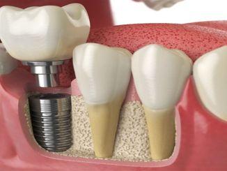 Pozornost na prehranu nakon implantacije zuba