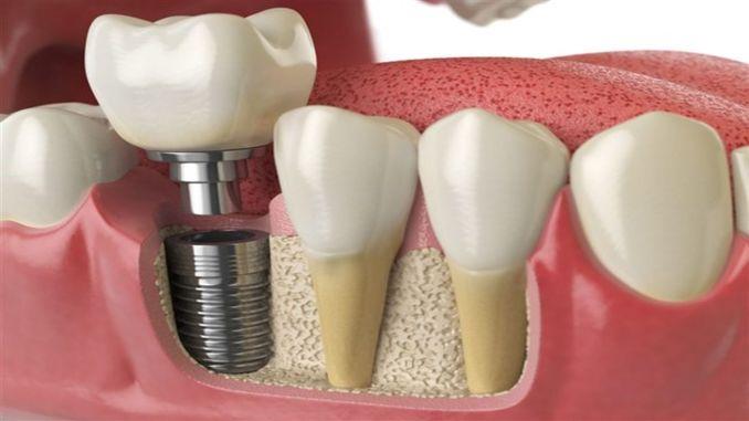 Aufmerksamkeit auf Ernährung nach Zahnimplantation