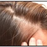 Tratamiento Natural Para La Alopecia Difusa