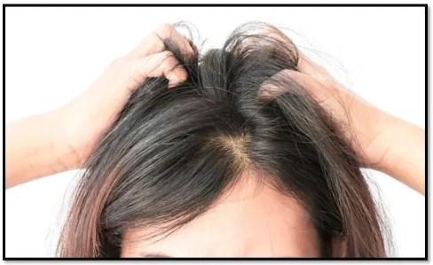 como aliviar el picor de la cabeza
