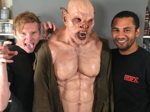 IMG 3056 300x225 - Ian Cromer & Lasander Washington applying RBFX prosthetics on Sidney Cumbie