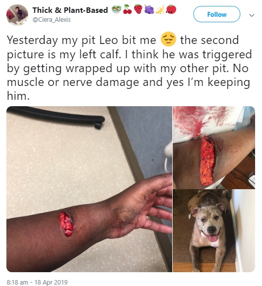 WARNING! Graphic Photos/Videos of Pit Bull Victims